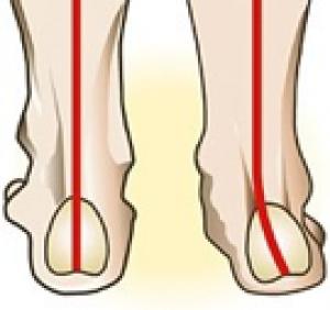 eca916f8 Pronasjon er rullebevegelsen foten gjør når den treffer bakken. Normalt  starter steget på utsiden av hælen, ruller fremover, og avslutter med  stortåen.